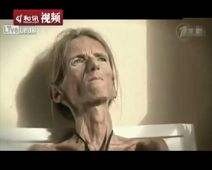 世界上最瘦的骷髅女_减肥噩梦最瘦骷髅女告诫粉丝莫重演悲剧组